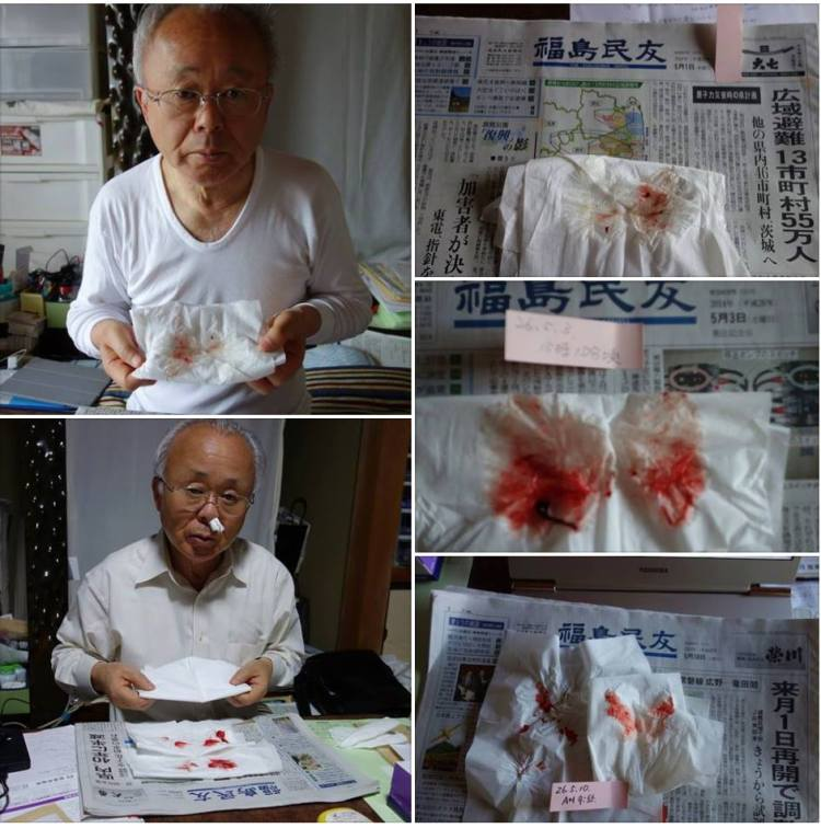 Former Mayor of Futaba, Idogawa san exposing his continuous nosebleeds - Various days in May 2014